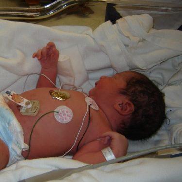 福田病院の出産費用は?熊本の日本一赤ちゃんが生まれる人気の病院